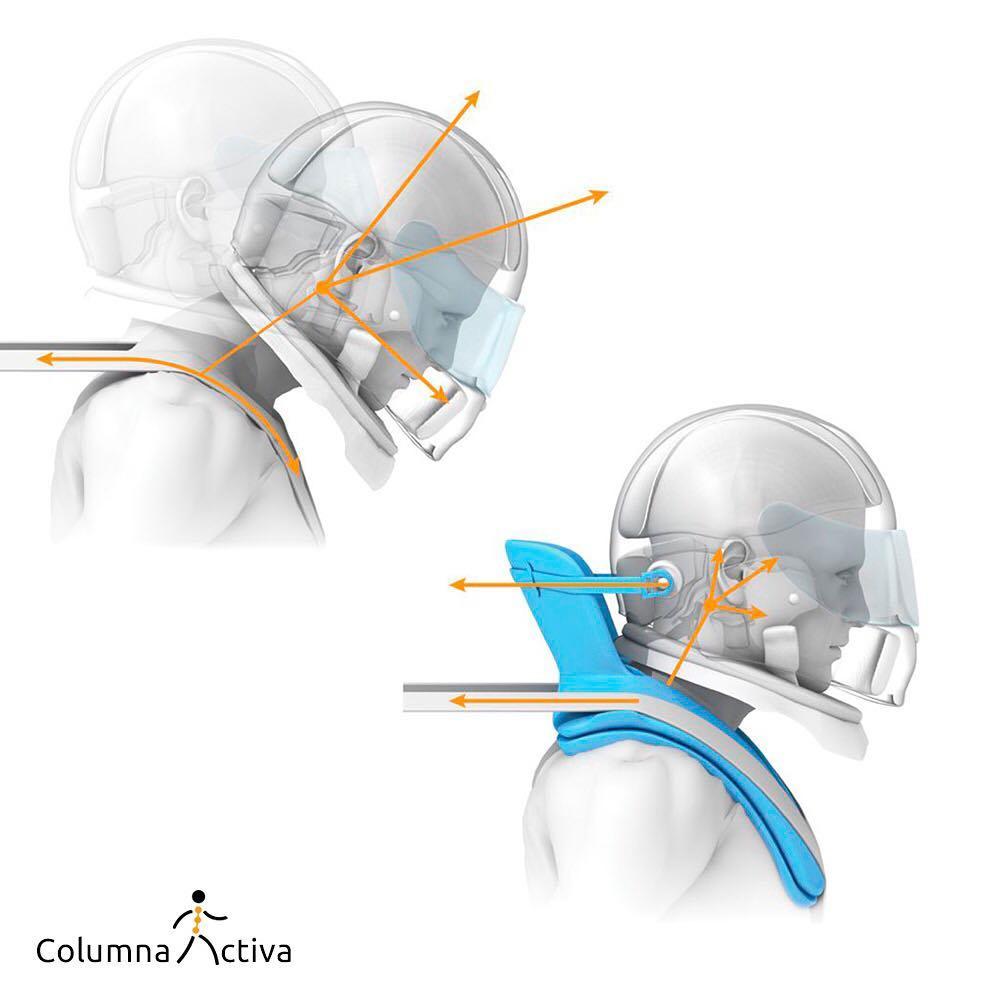 Sistema HANS protección de cabeza y cuello para pilotos de automóviles