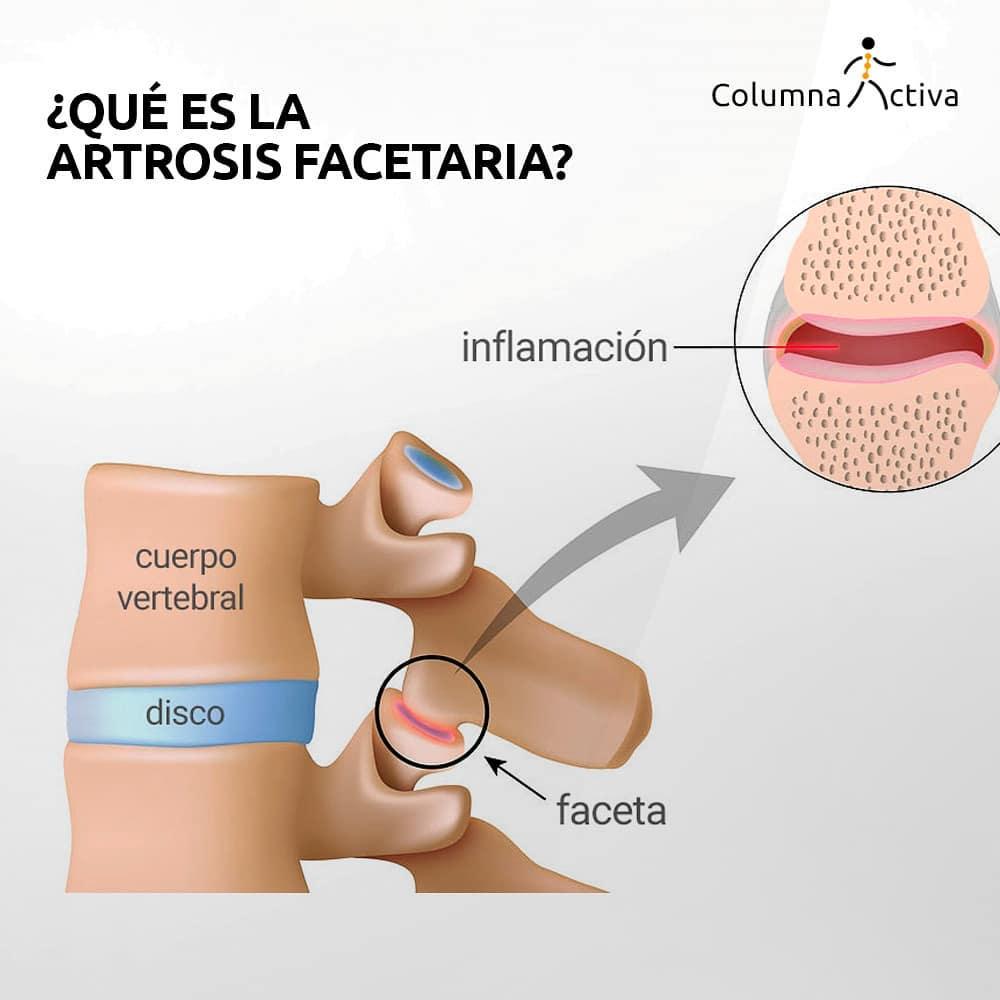 ¿Qué es la artrosis facetaria?