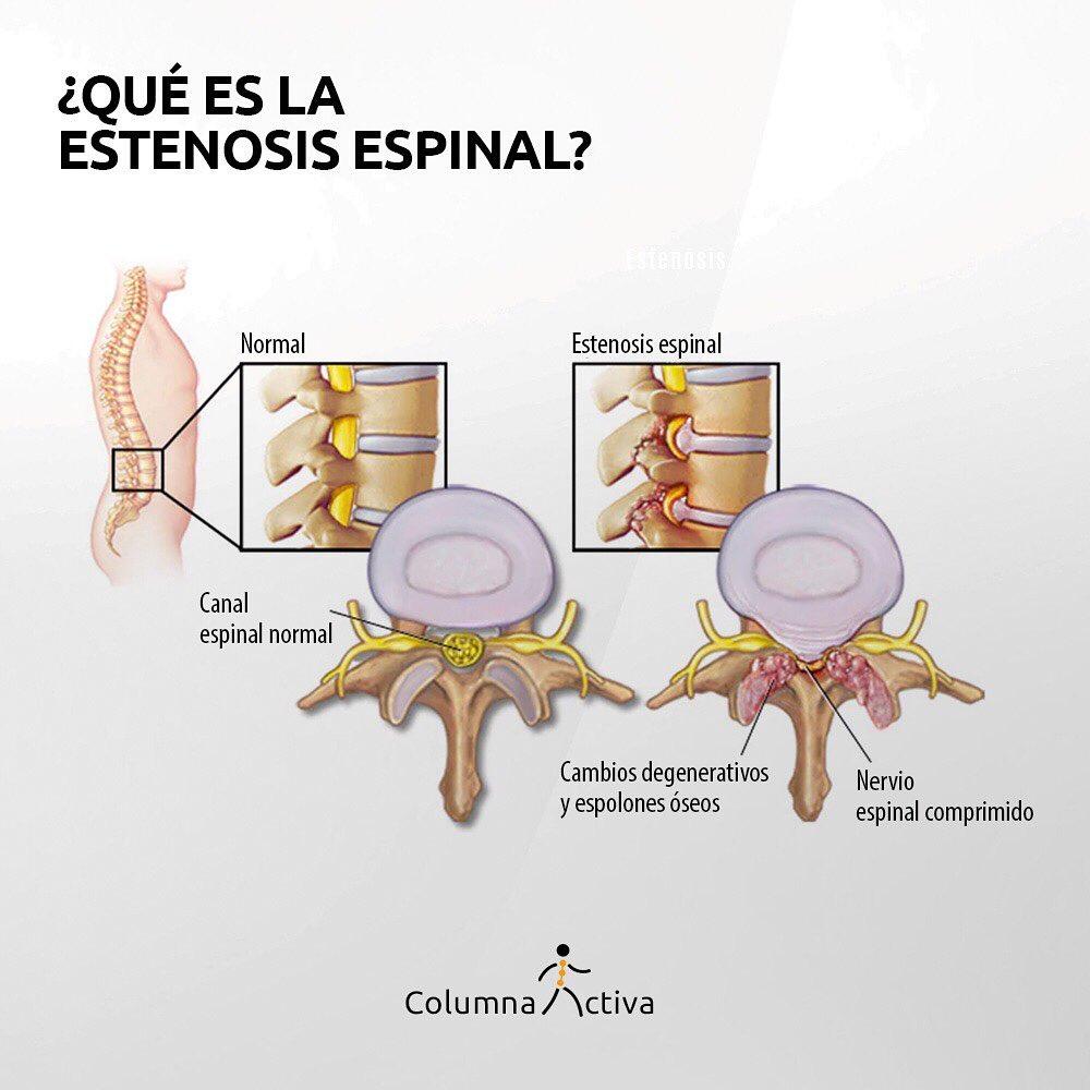 ¿Qué es la esteneosis espinal?