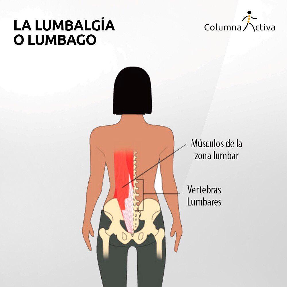 La lumbalgía o lumbago