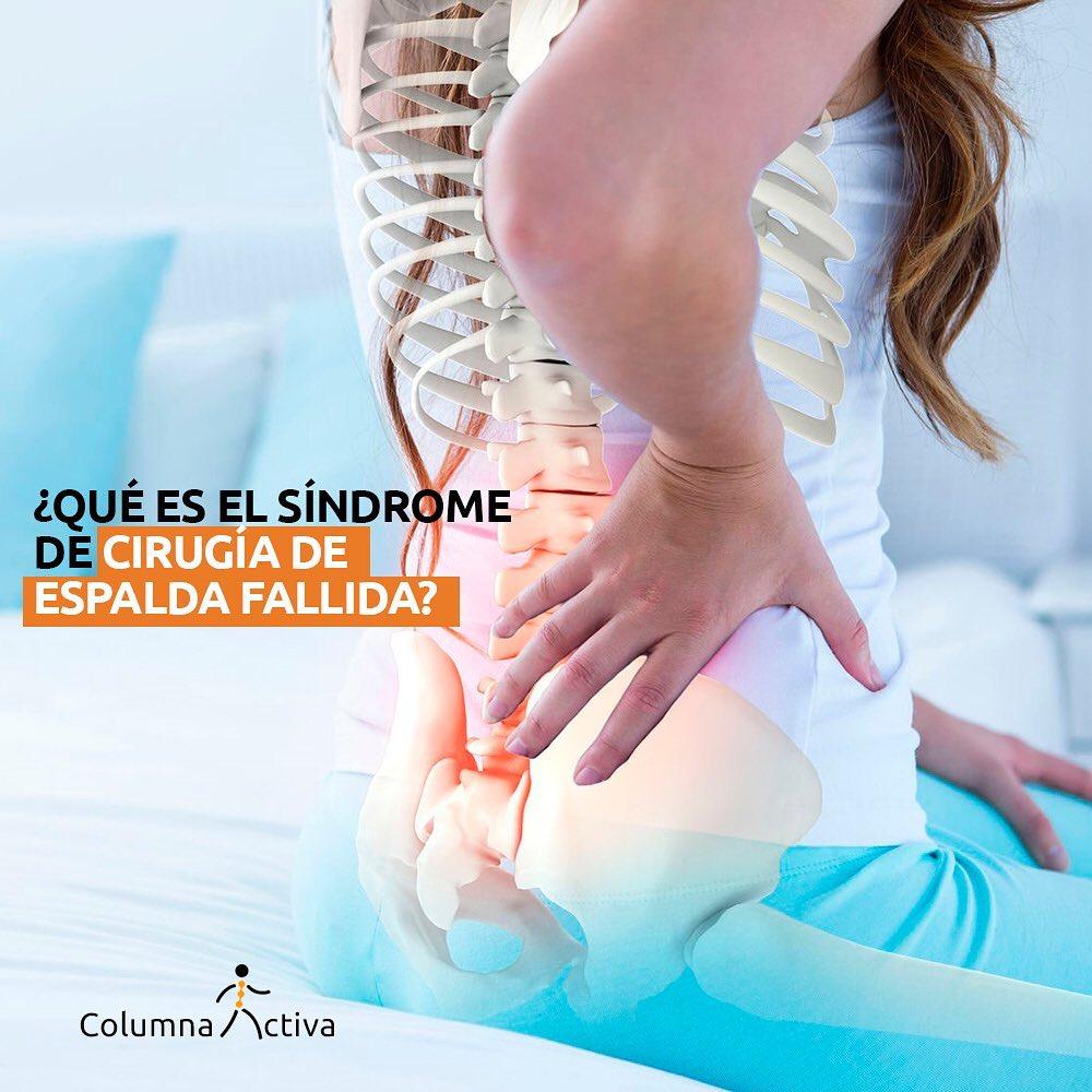 Síndrome de cirugia de espalda fallida