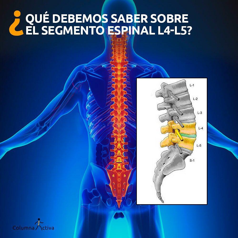¿Qué debemos saber sobre el segmento espinal L4-L5?