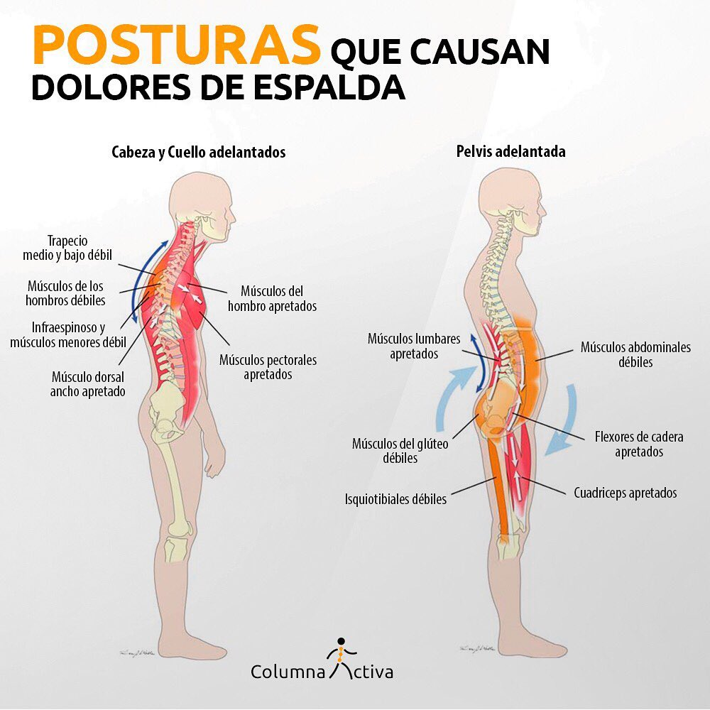 Posturas que causan dolores de espalda