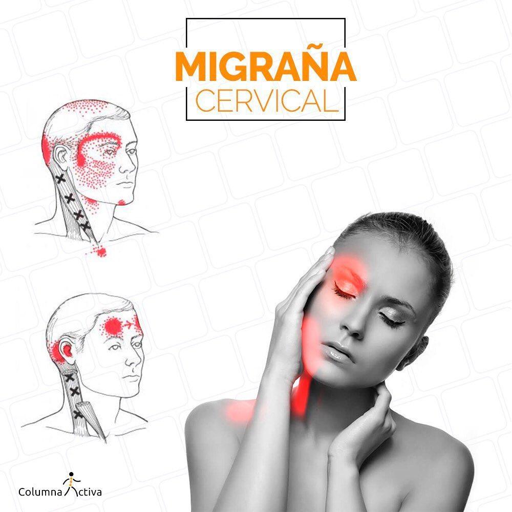 Migraña cervical