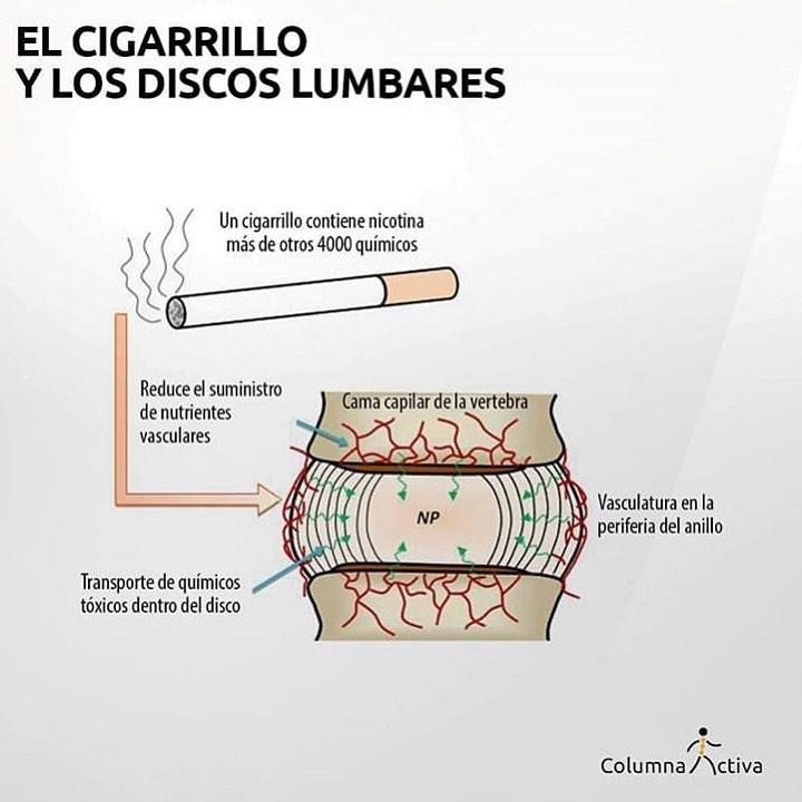 El cigarrillo y ls discos lumbares