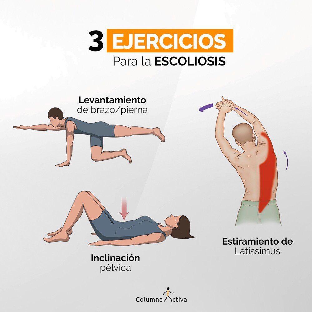 3 Ejercicios para la escoliosis