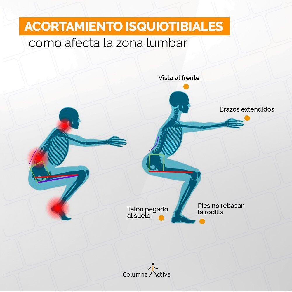 Acortamiento de los isquiotibiales como, afecta la zona lumbar