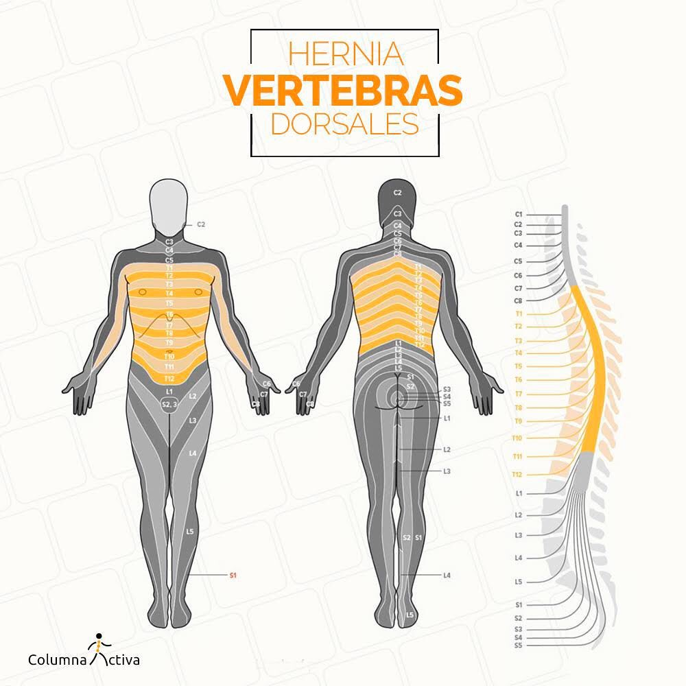 Hernia vertebras dorsales