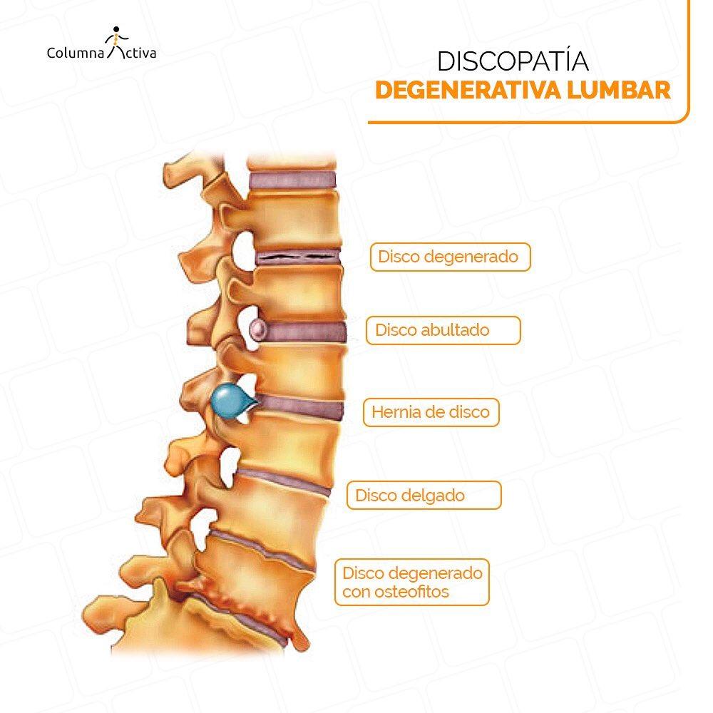 Discopatía degenerativa lumbar