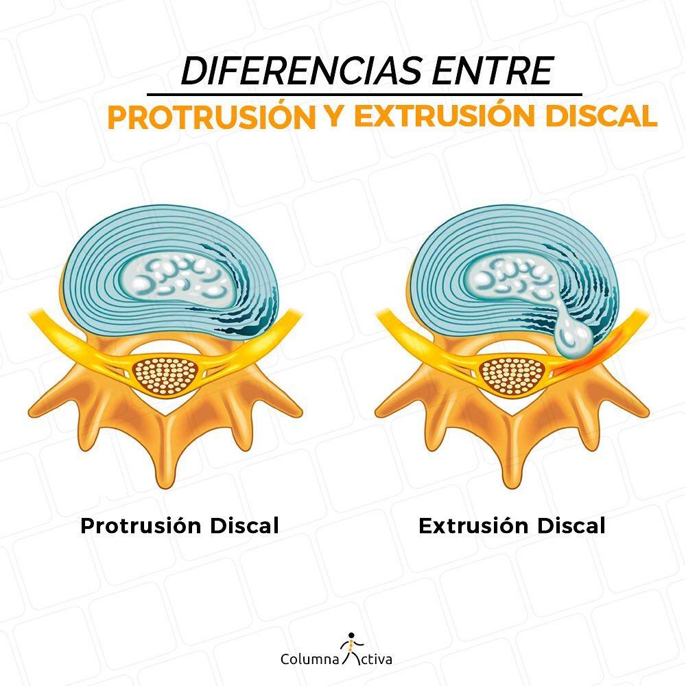Diferencias entre protusión y extrusión discal