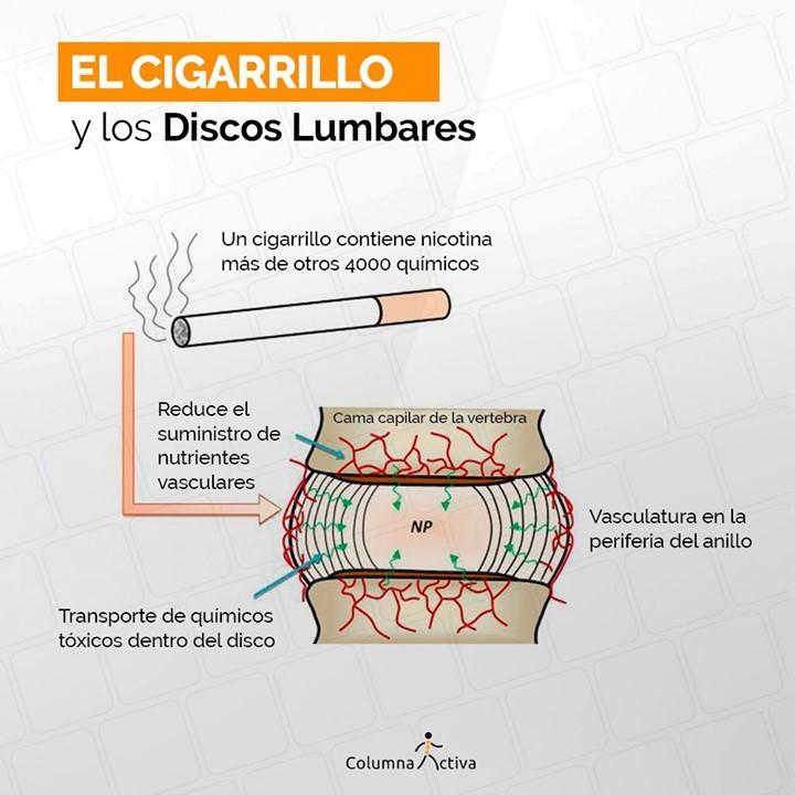 El cigarrillo y los discos lumbares