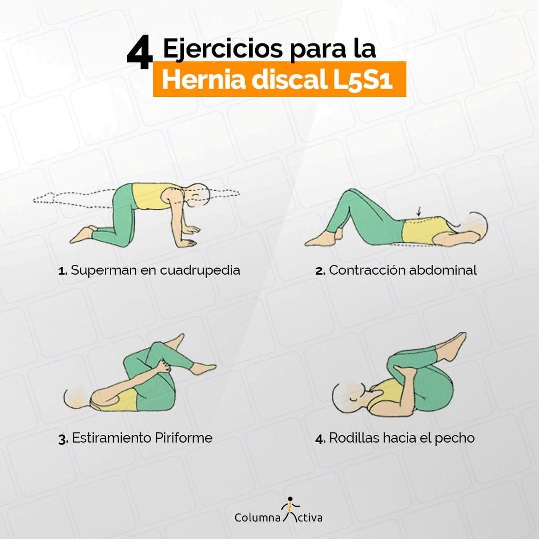 4 ejercicios para la hernia discal L5S1