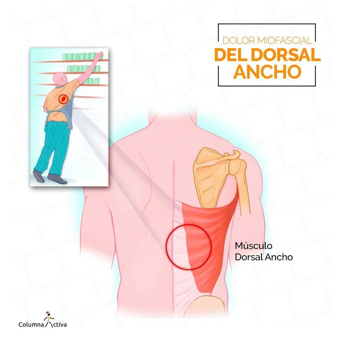 Dolor miofascial del dorsal ancho