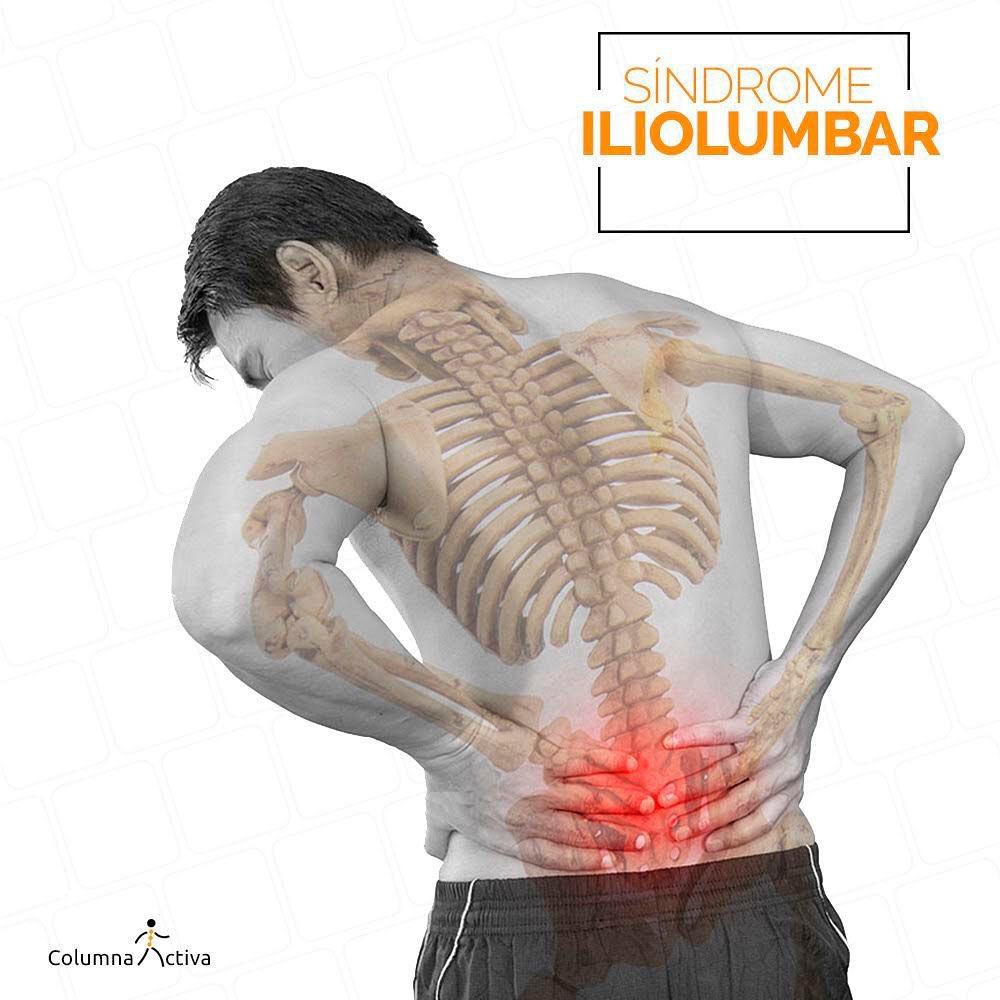 Sindrome Iliolumbar