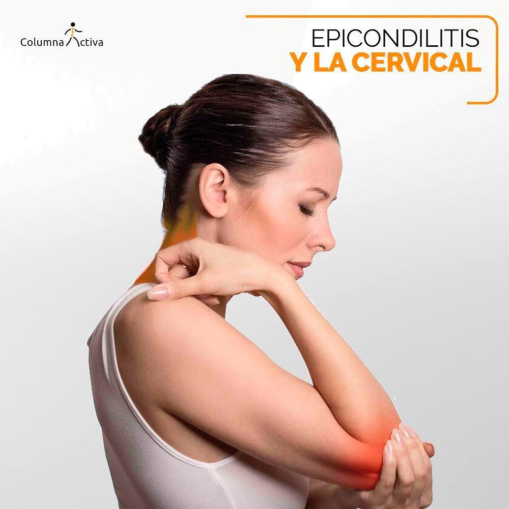 Epicondilitis y la cervical