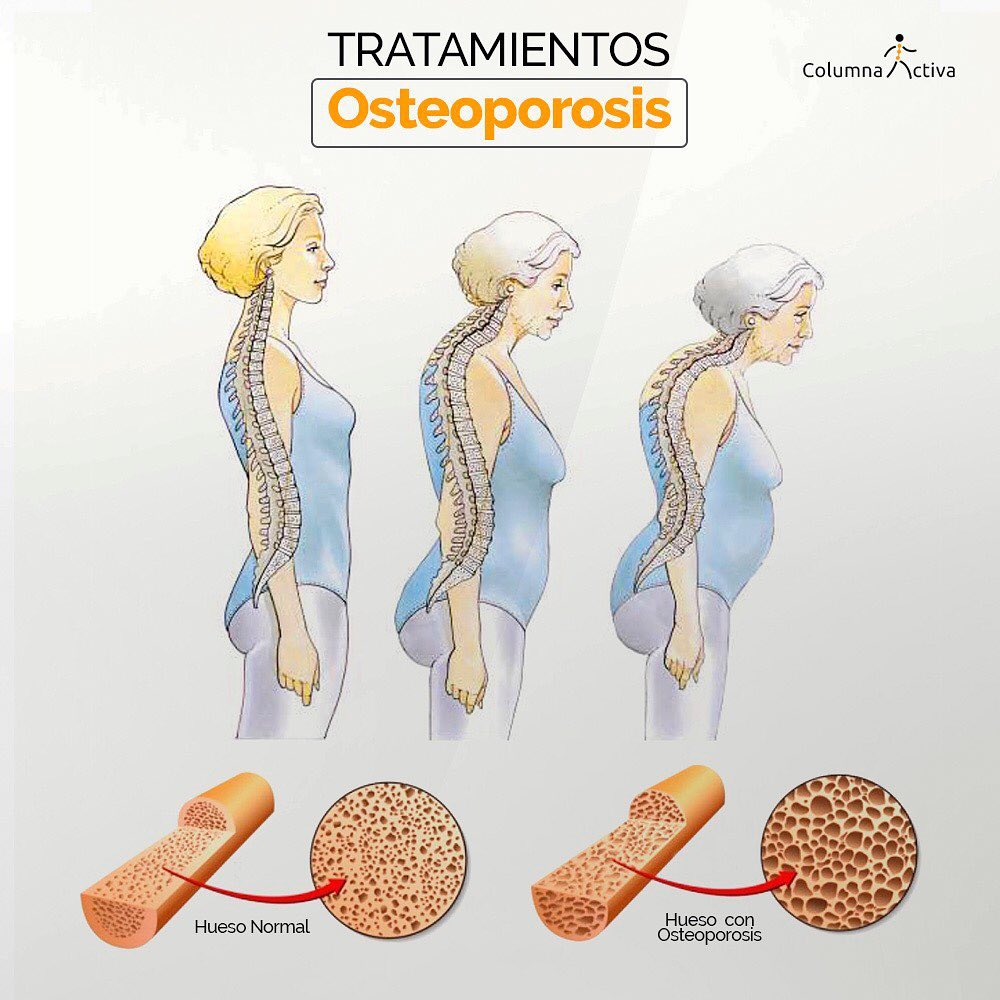 Tratamientos Osteoporosis