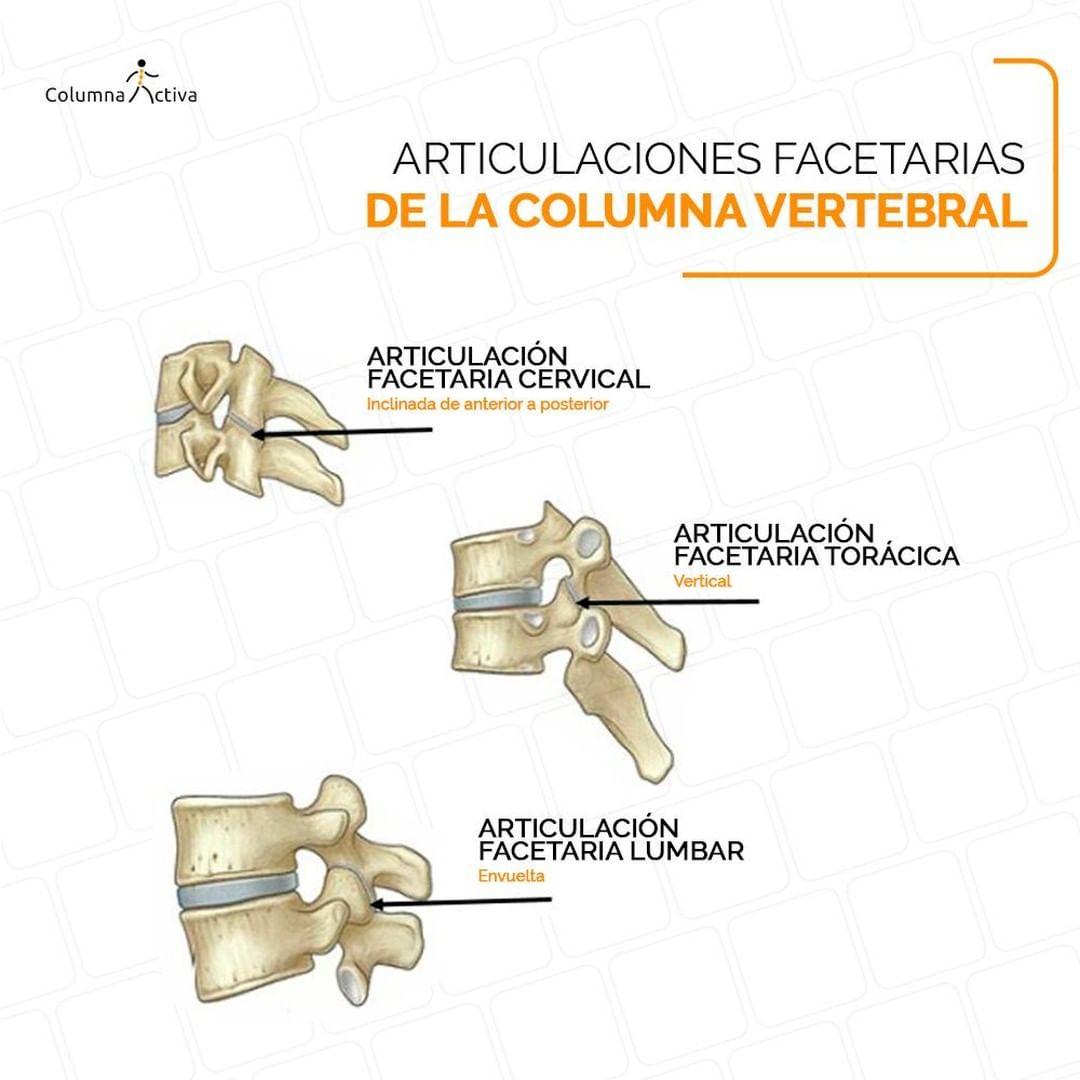 Articulaciones facetarias de la columna vertebral