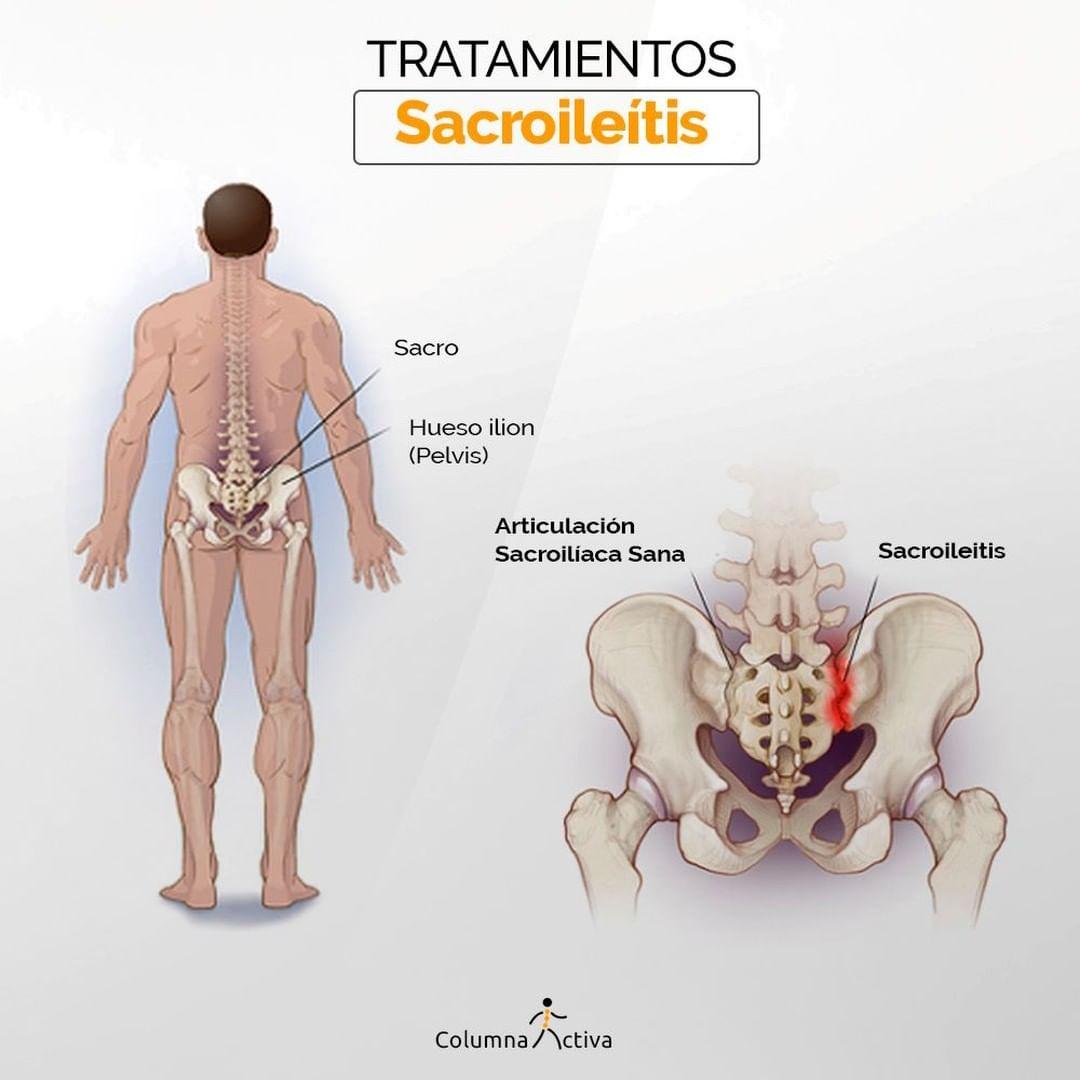 Tratamientos sacroileitis