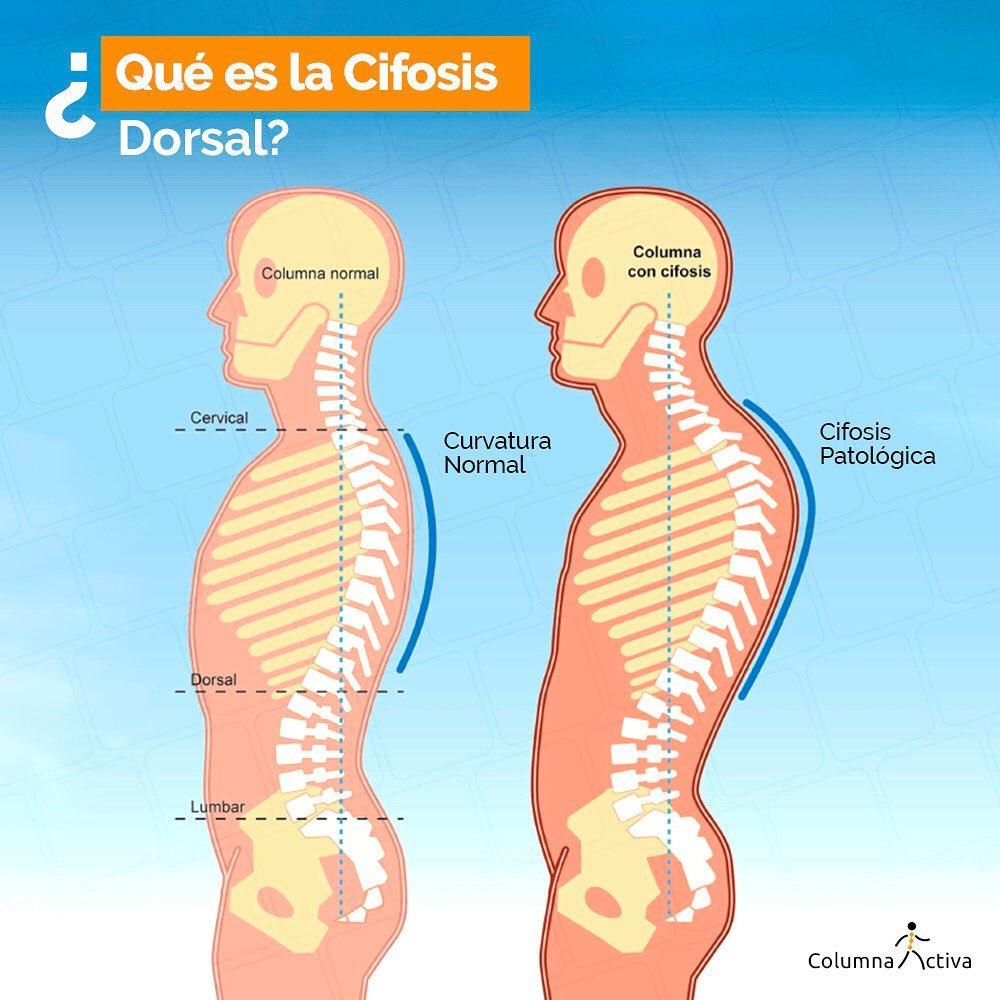 ¿Qué es la cifosis dorsal?