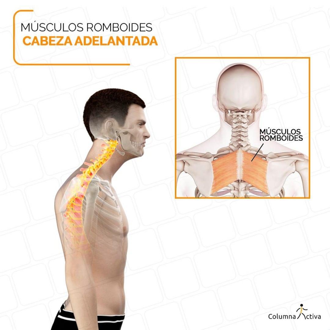 Músculos romboides cabeza adelantada
