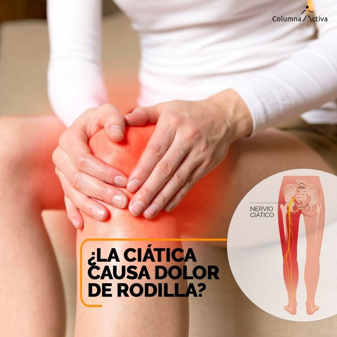 ¿La ciática causa dolor de rodilla?