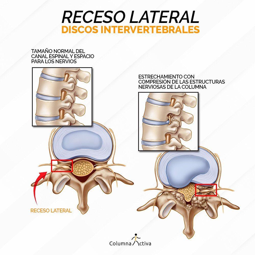 Receso lateral discos intervertebrales?