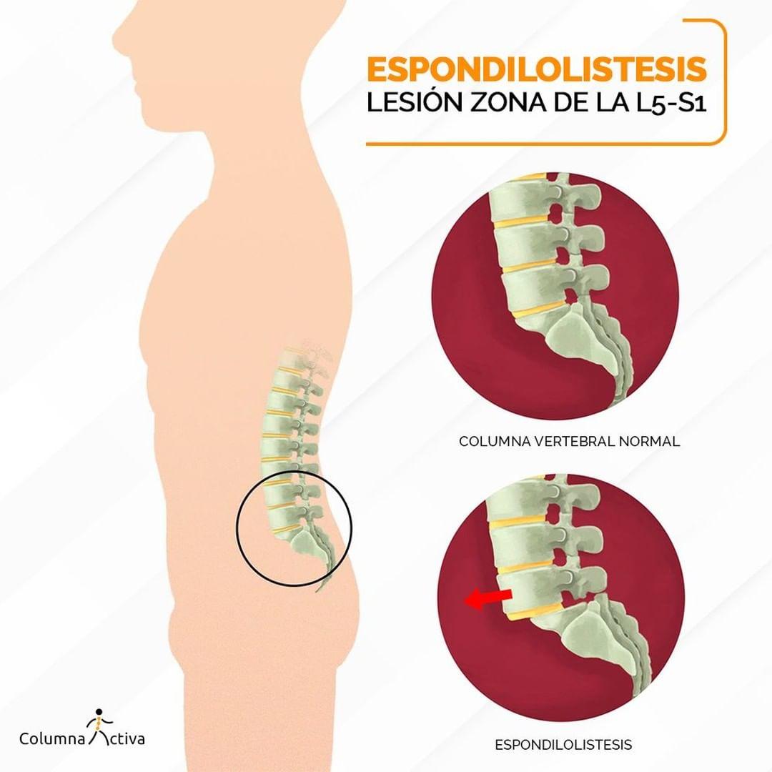 Espondilolistesis / Lesión zona de la L5-S1