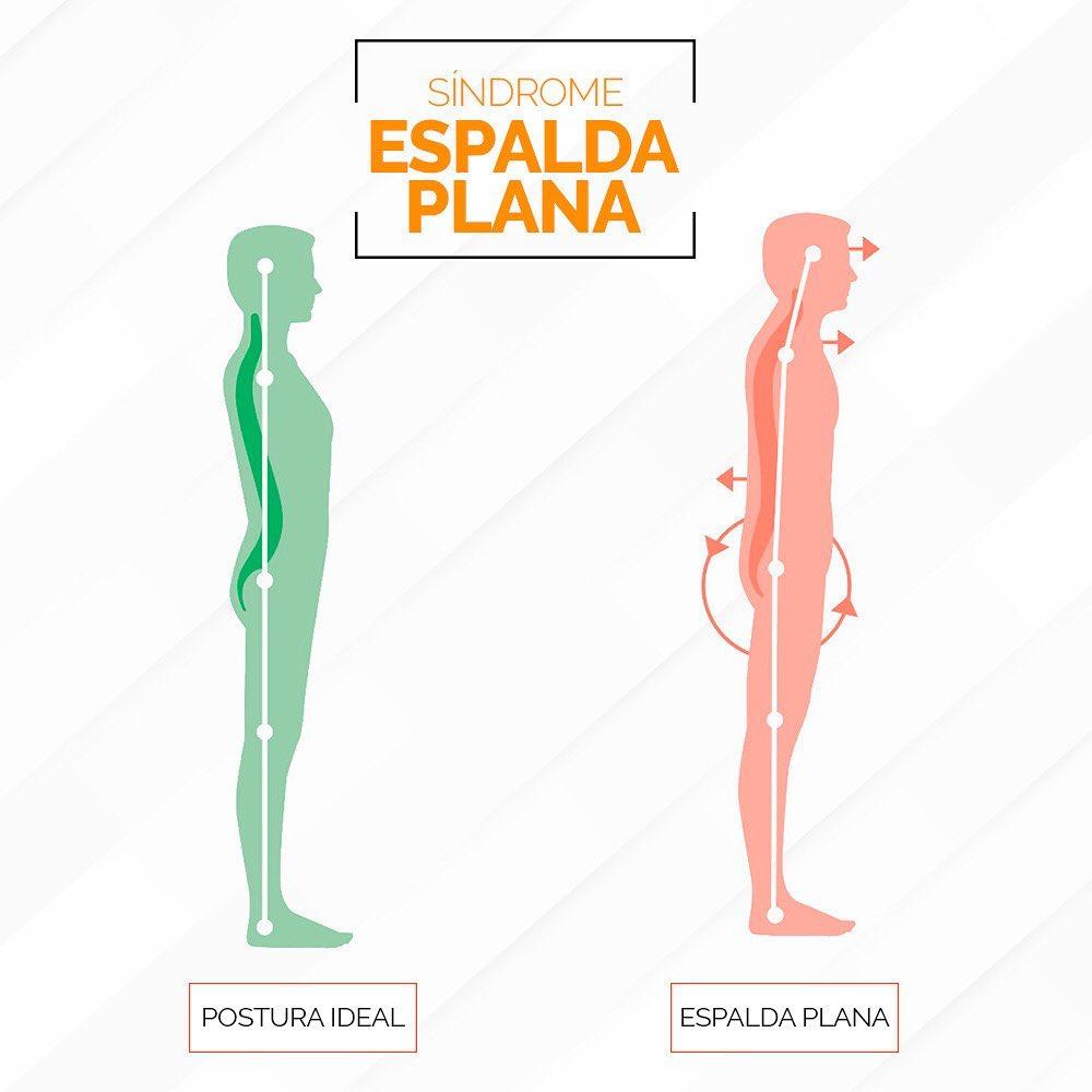 Síndrome de espalda plana